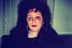 Nan Goldin - Abuse